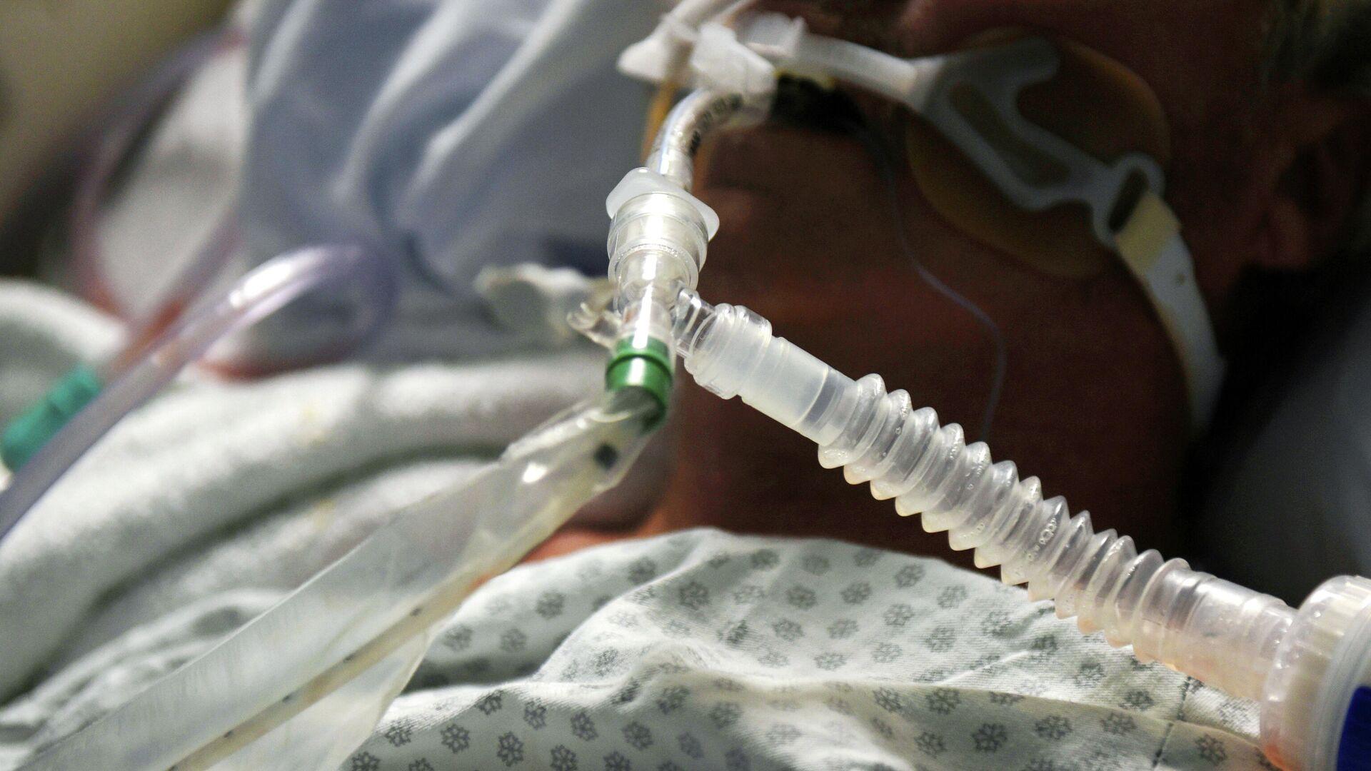 Ein Covid-19-Patient wird mit einem Beatmungsgerät behandelt - SNA, 1920, 19.12.2020